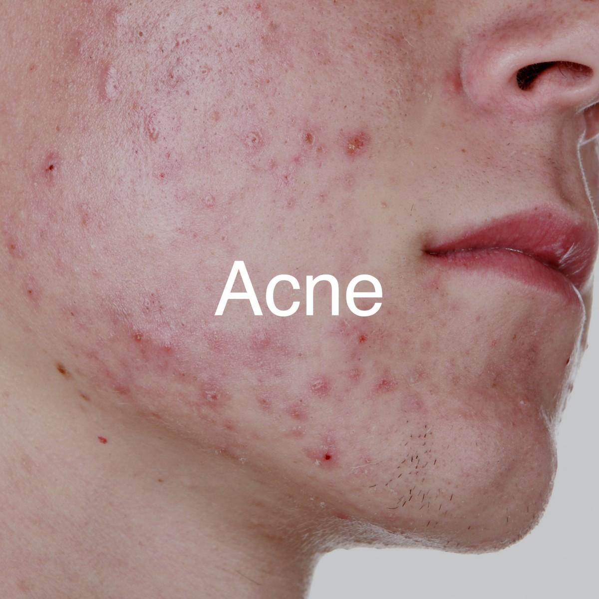 Huidtherapie-Twente-Acne-hover-1