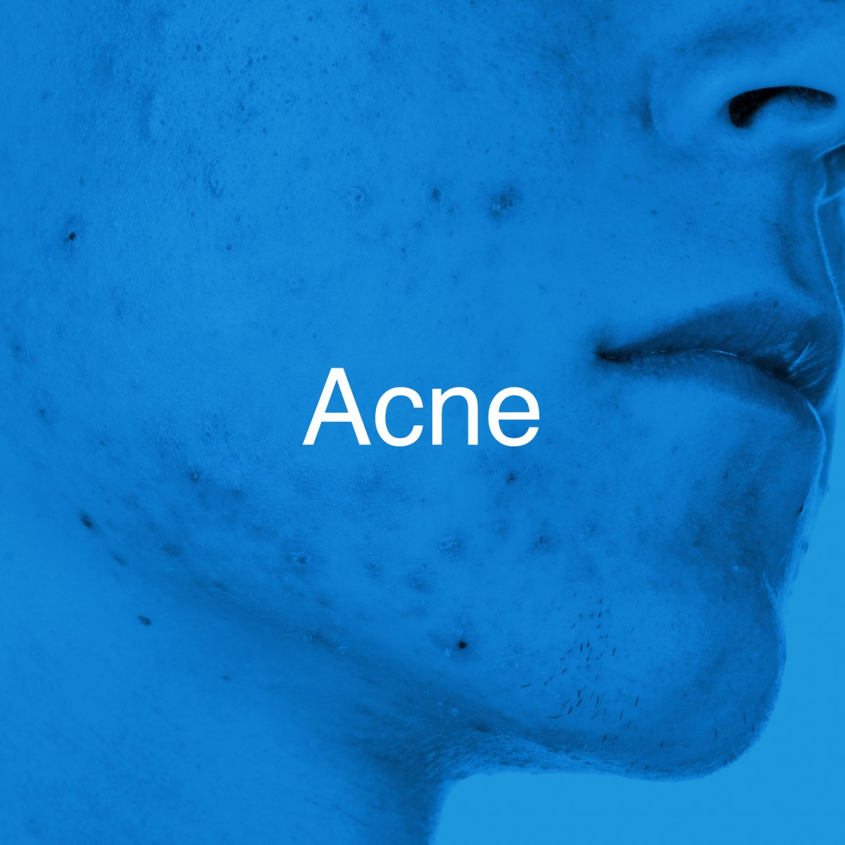 Huidtherapie-Twente-Acne-hover-2
