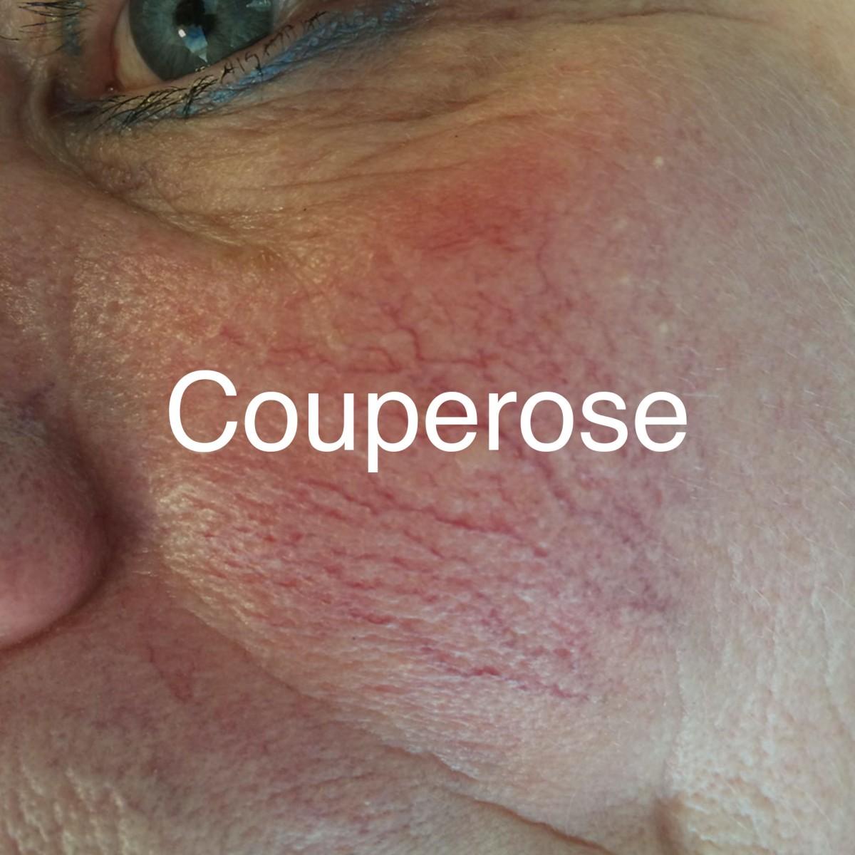 Huidtherapie-Twente-couperose-hover-1