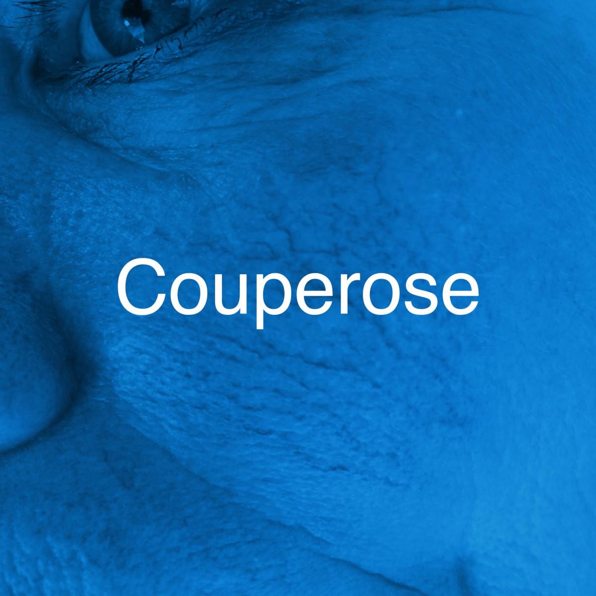 Huidtherapie-Twente-couperose-hover-2