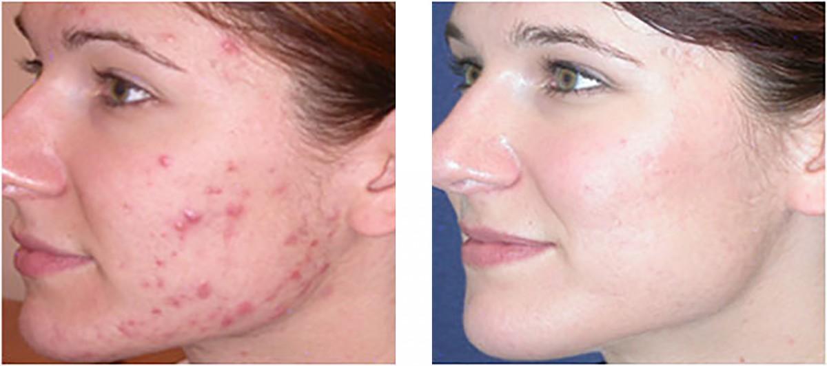 gezicht laseren acne